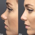 Los trucos de belleza del médico estético de celebrities (Kim Kardashian, Kylie Jenner, JLo y muchísimas modelos). Ácido hialurónico, botox
