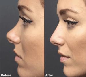 Simon Ourian. Los trucos de belleza del médico estético de celebrities (Kim Kardashian, Kylie Jenner, JLo y muchísimas modelos). Ácido hialurónico, botox